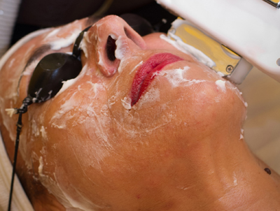 ipl-rf-facial-treatments