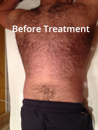 Before Mens Hair Removal at Zoē Spa